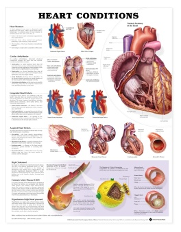 conditions of the heart poster