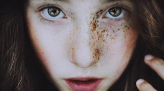 freckles-portraits-women